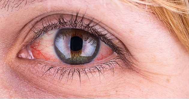 Besplatna provera očnog pritiska