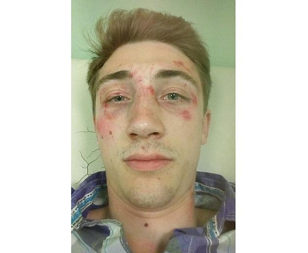 Osumnjičeni za učestvovanje u prebijanju studenta pušten posle saslušanja
