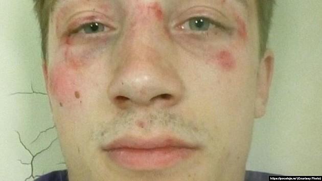 Pretučeni student se ne seća ko ga je napao, ne oseća se bezbedno u rodnom gradu